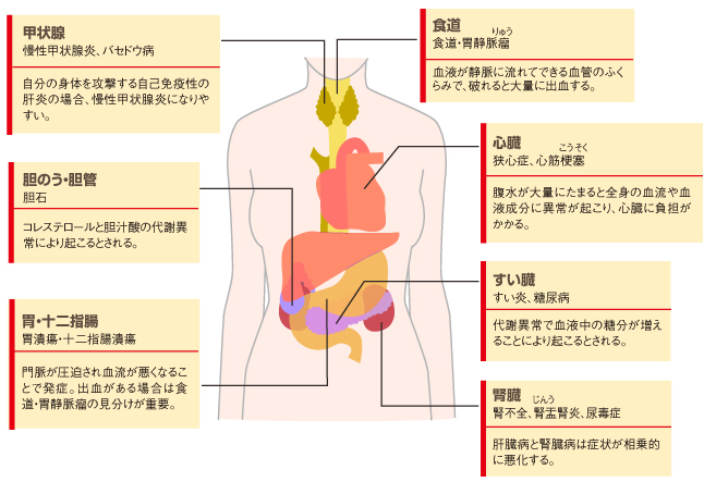 病気 女性 肝臓