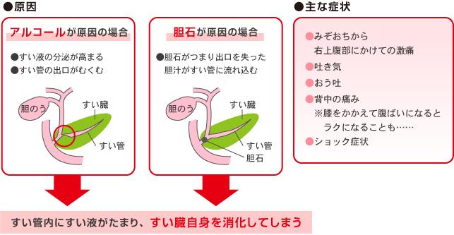 癌 症状 チェック 膵臓